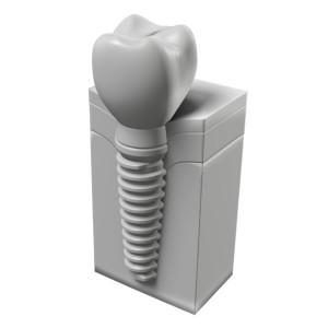 Fogászati implantátum koronával